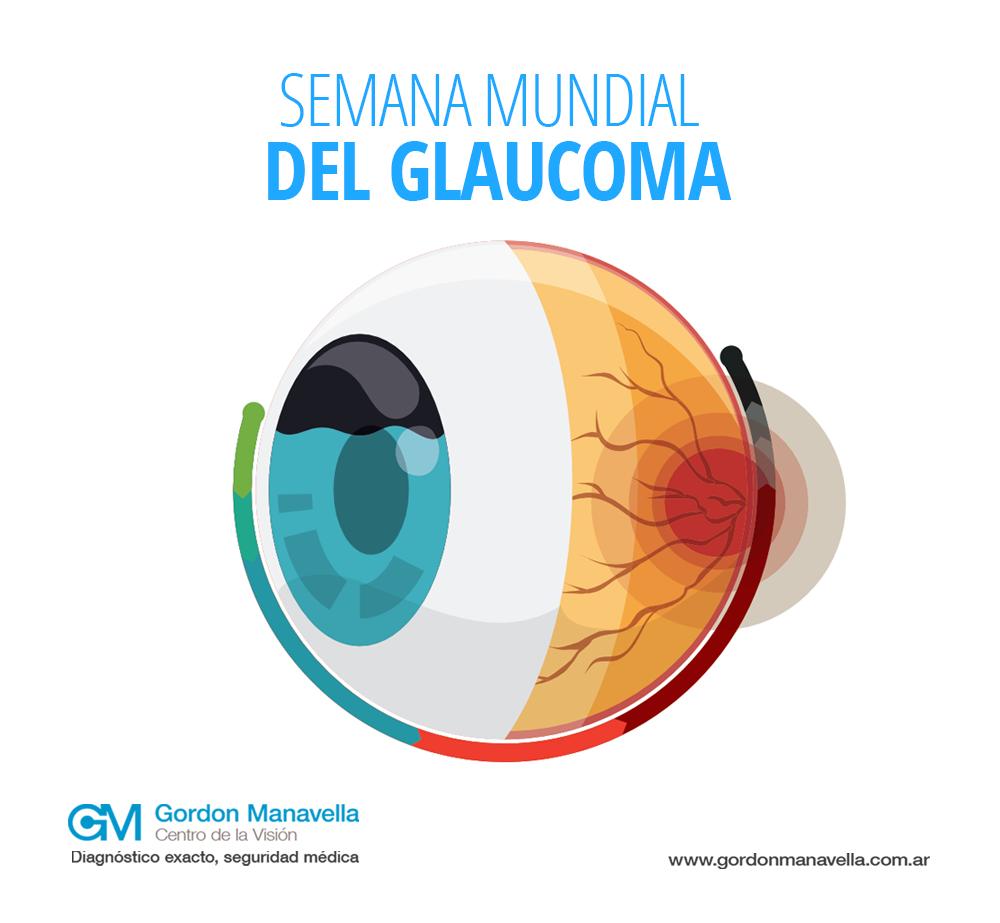 glaucoma-web